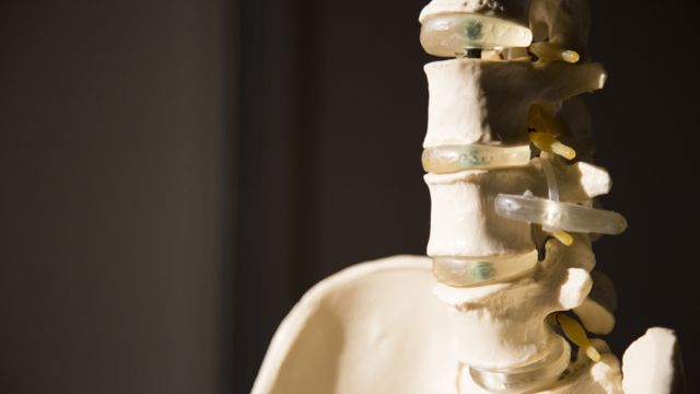 Spine for spinal fusion surgery